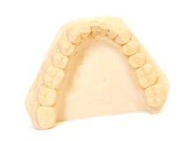 Dental impression 2. Dental impression isolated against white background Stock Photo