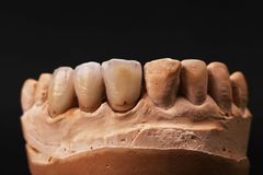 Dental impression. Royalty Free Stock Image
