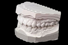 Dental impression chalk model Royalty Free Stock Photos