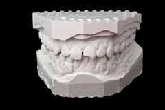 Dental impression chalk model Stock Photos