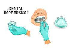 Dental impression, dentistry Royalty Free Stock Photography