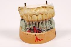 Dental Impressions stock photos