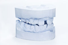 Dental impressions Stock Photography