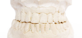 Dental imprint Stock Images