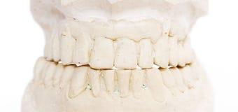 Dental imprint. Dental impression isolated against white background Stock Images