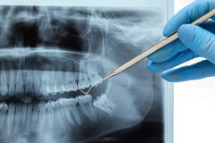 Dental instruments. Dentures and medical tools and a prosthesis Stock Photo