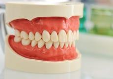 Dental jaw. Teeth checkup at dentists office royalty free stock photography
