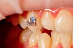 Dental jewellery. Photo of dental jewellery on tooth royalty free stock photo