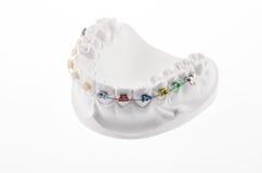 Dental lower jaw. Bracket braces model isolated on white Royalty Free Stock Image