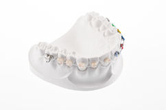 Dental lower jaw Stock Photography