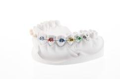 Dental lower jaw Royalty Free Stock Photo