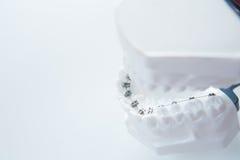 Dental lower jaw bracket braces model on white Royalty Free Stock Photos
