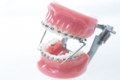 Dental lower jaw bracket braces model on white Royalty Free Stock Photography