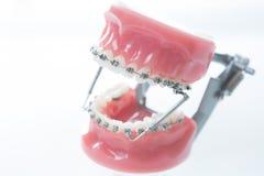 Dental lower jaw bracket braces model on white Royalty Free Stock Photography
