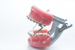 Dental lower jaw bracket braces model on white. Selective focus stock images