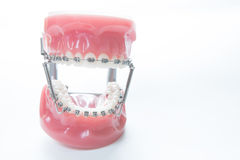 Dental lower jaw bracket braces model on white Royalty Free Stock Photos