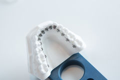 Dental lower jaw bracket braces model on white Stock Photos