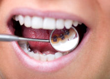 Dental mirror showing lingual braces. Female patient showing her invisible lingual braces braces on dental mirror Stock Photos