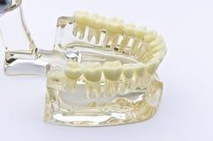 Dental model Stock Photo