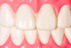 Dental Model Of Frontal Teeth Royalty Free Stock Image