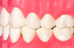 Dental model Royalty Free Stock Photos