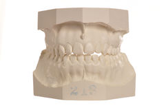 Dental model of human teeth on white Stock Photography