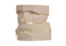 Dental model of human teeth on white Royalty Free Stock Photos
