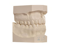 Dental model of human teeth on white Stock Image