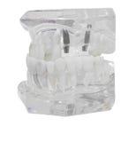 Dental Model plastic of Teeth  transparent Royalty Free Stock Photography