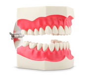 Dental model of teeth Royalty Free Stock Photo