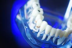 Dental model tooth decay. Dental teeth orthodontic dentistry teachng model with gums, tooth enamel, plaque and decay Royalty Free Stock Photo