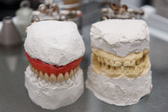 Dental model Royalty Free Stock Images