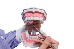 The dental model is used to teach how to check the cleanliness of the teeth by the doctor. isolated on white background. Of file with Clipping Path stock photos