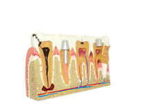 Free Dental Modell. Stock Photo - 16427110