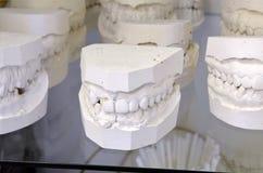 Dental models Royalty Free Stock Photo