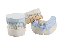 Dental mold Royalty Free Stock Photos