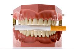 Dental mold biting a cigarette Royalty Free Stock Photos