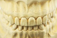 Dental mold for dental prosthesis royalty free stock photography