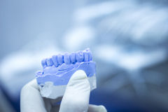 Dental mold dentist clay teeth ceramic plate model cast Royalty Free Stock Images