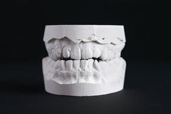 Dental Mold Stock Photography