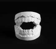 Dental Mold Royalty Free Stock Photos