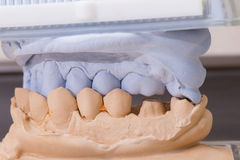 Dental Mold For Prosthetic Teeth Royalty Free Stock Photography