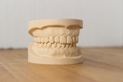 Dental mold showing a full set of teeth. On a wooden table viewed side on in a dentistry, oral hygiene and healthcare concept Royalty Free Stock Photos