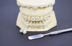 Dental molding illustrating the dental industry and dental implantology. Macro shoot Stock Image