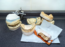 Dental molds for prosthetic teeth stock photo