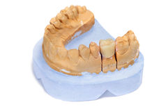 Dental mould. A dental mould with a prosthesis on a white background Stock Photography
