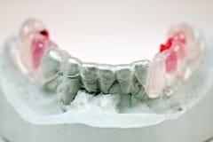 Dental mould Royalty Free Stock Photos