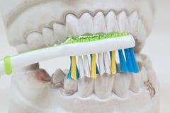 Dental mould Stock Image