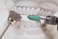 Dental mould Stock Photo