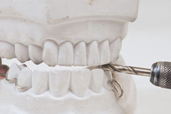 Dental mould Stock Photography